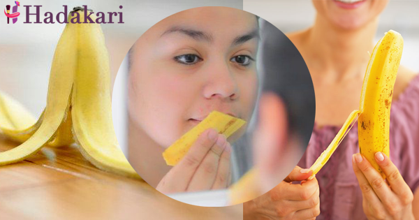 5 ways to fight acne with banana peel